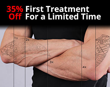 Get 35% off your first laser tattoo removal treatment