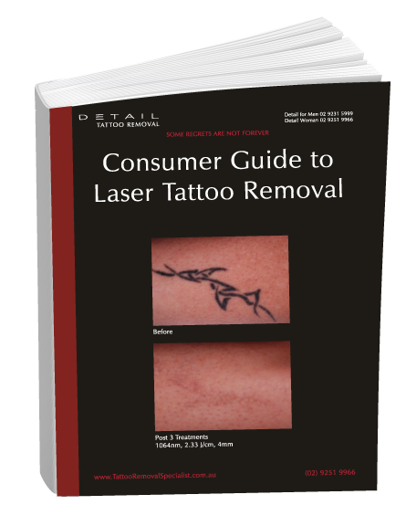 Consumer guide to Tattoo Removal Sydney