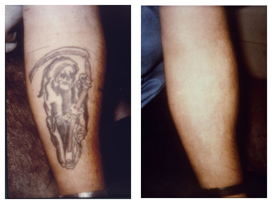 b a1 laser tattoo removal sydney tattoo removal guarantee