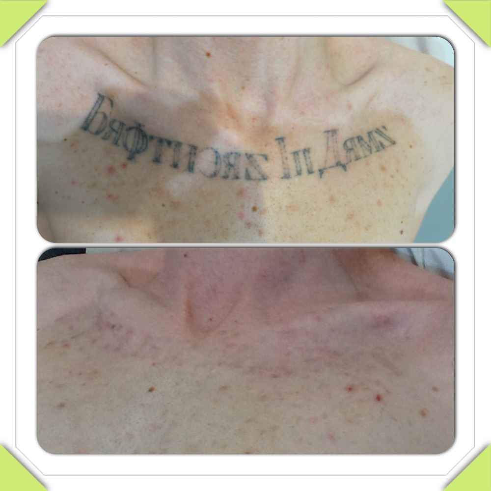 Sydney Laser Tattoo Removal Before After Photos 9231 5999