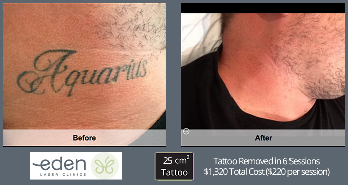 Tattoo removal costs in Sydney #3