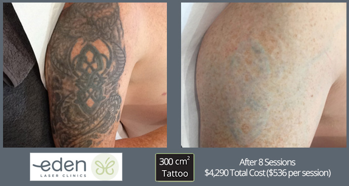 Tattoo removal costs in Sydney #5