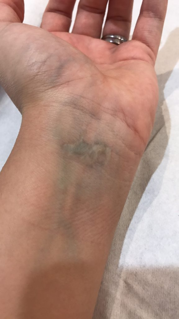 After: Ink cleared but some scarring left due to previous clinic