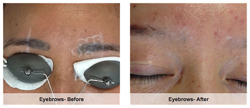 Cosmetic eyebrow tattoo removal before after