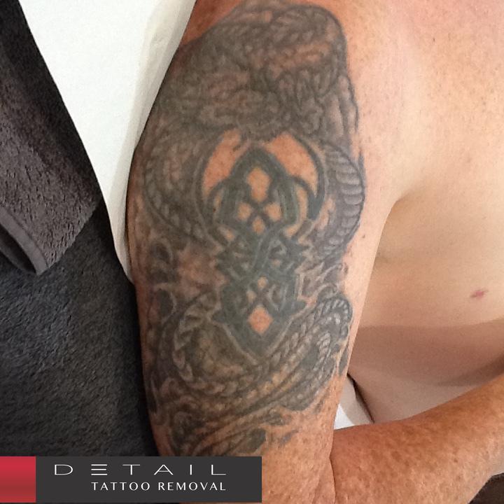 Before: Tattoo w/ Green