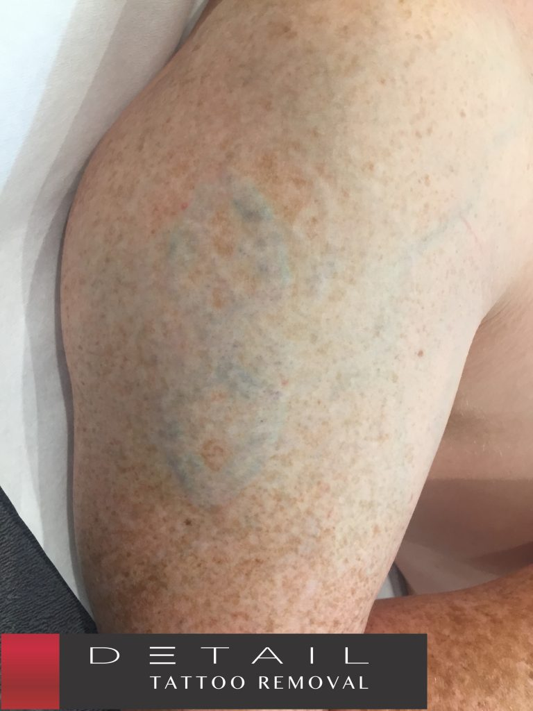 After: Tattoo treated w/ 785nm