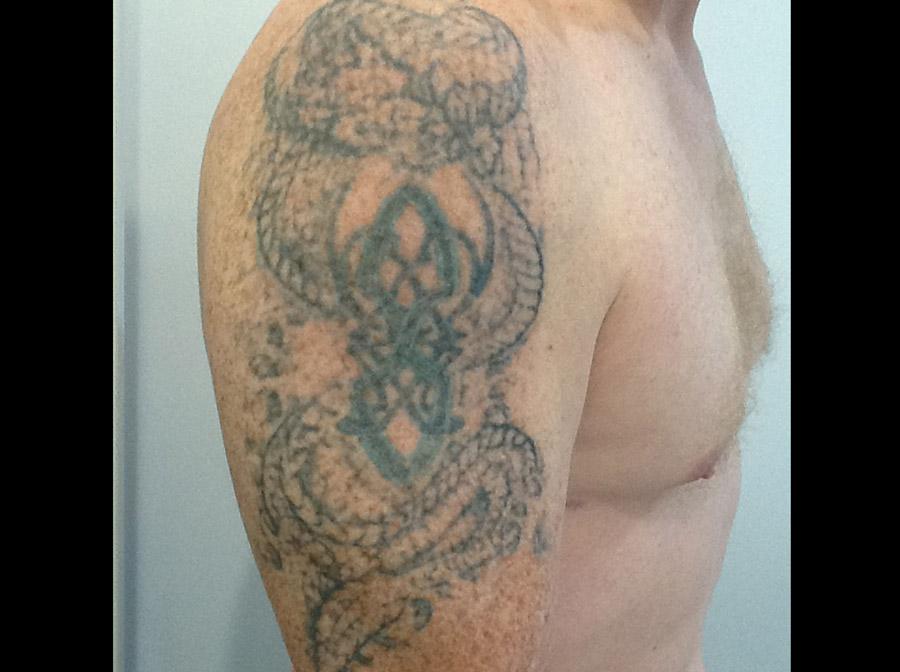 Celtic arm 2