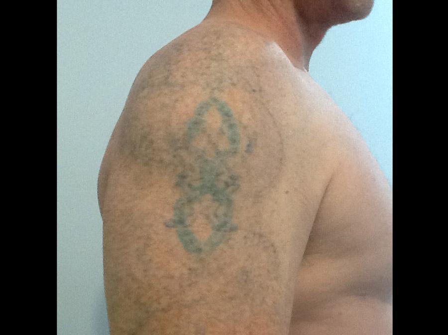Celtic arm 4