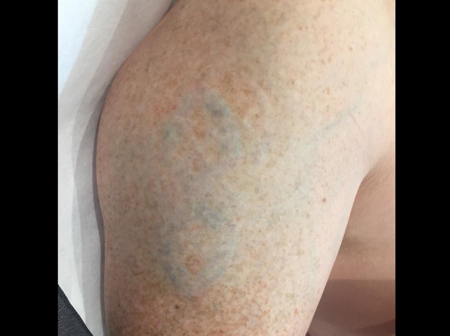 Tattoo Removal Sydney Tattoo Best Picoway Technology