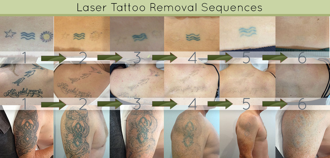 Photos of clients having their tattoos removed by laser over time - 6 photos per client