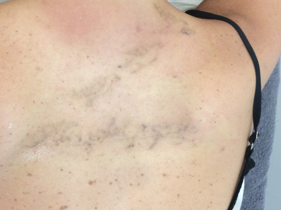 Sydney Laser Tattoo Removal Before Amp After Photos 8020 5805