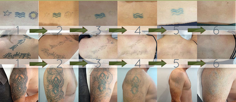 Sydney laser tattoo removal client sequence