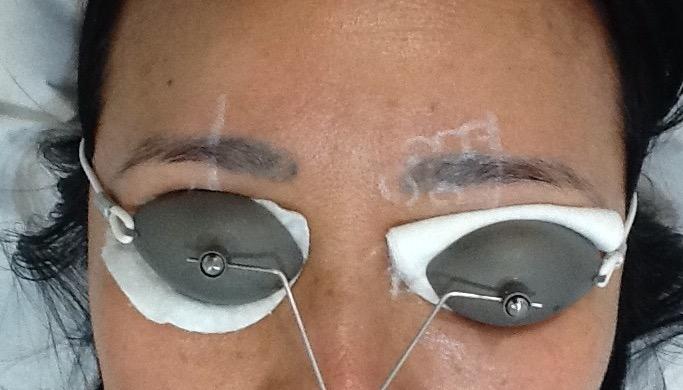 Eyebrows- Before