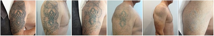 Eden tattoo removal sequence arm Sydney