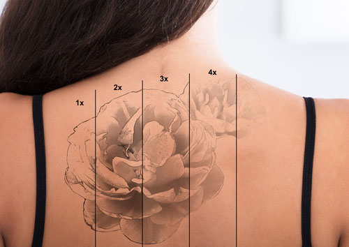 Why are tattoos difficult to remove?