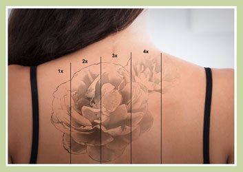Why Are Tattoos So Difficult To Remove?