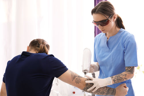 6 reasons why laser tattoo removal fails sydney