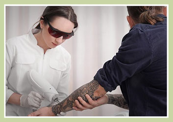 Is Your Laser Tattoo Removal Operator Qualified?