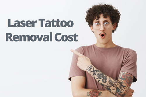 Laser tattoo removal cost Sydney