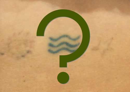 Laser tattoo removal frequently asked questions