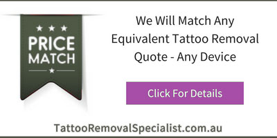 Laser tattoo removal price match in Sydney