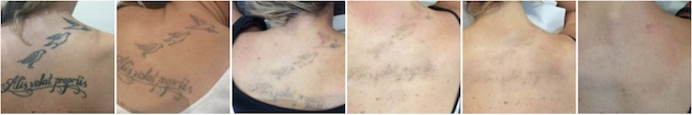 Tattoo removal sequence
