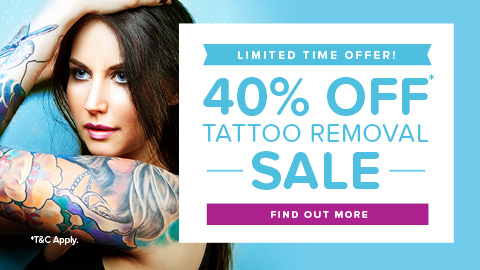 Picoway laser tattoo removal clinic 40% off sale