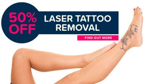 Eden Tattoo Removal Specialist - 50% off - Liverpool, Hurstville & Sans Souci